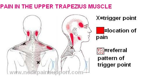 Massage Therapy and Tension Headaches – Massage Therapy ...